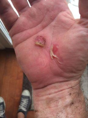 Hand Damage